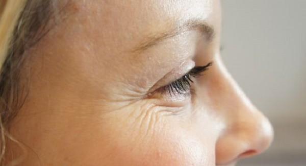 морщинки у глаз фото