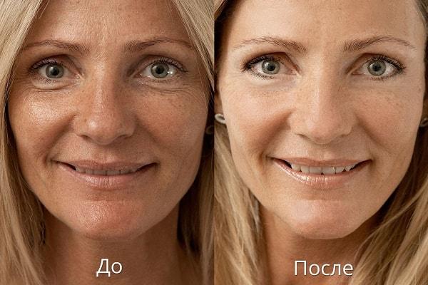 мезотерапия до и после