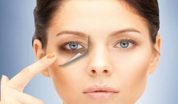как быстро убрать синяк под глазом