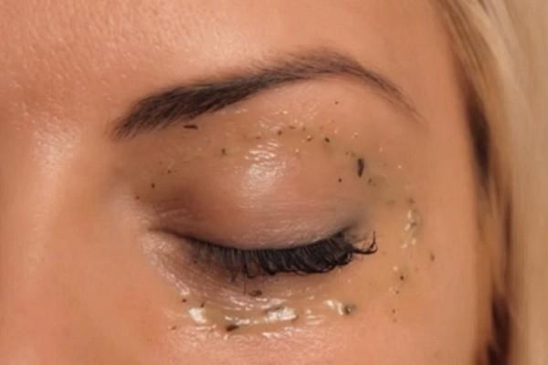 морщины под глазами в 30 лет - причины появления и что делать