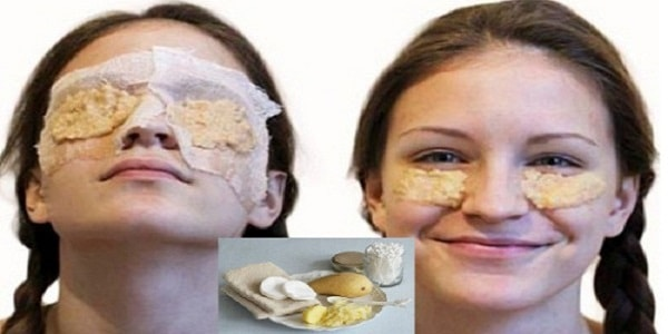 маска из картофеля под глаза