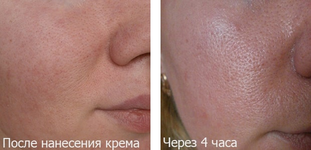 До и через 4 часа применения матирующего крема от Либридерм