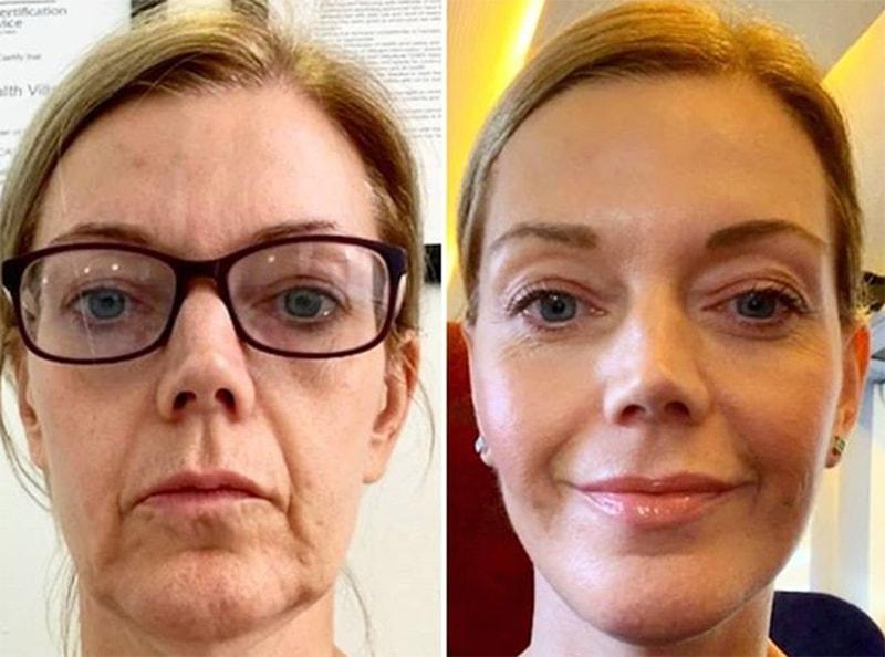 фото до и после уколов с гиалуроновой кислотой